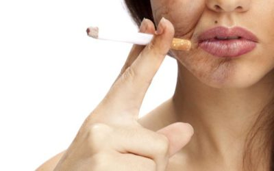 EFFETTI DEL FUMO SULLA PELLE